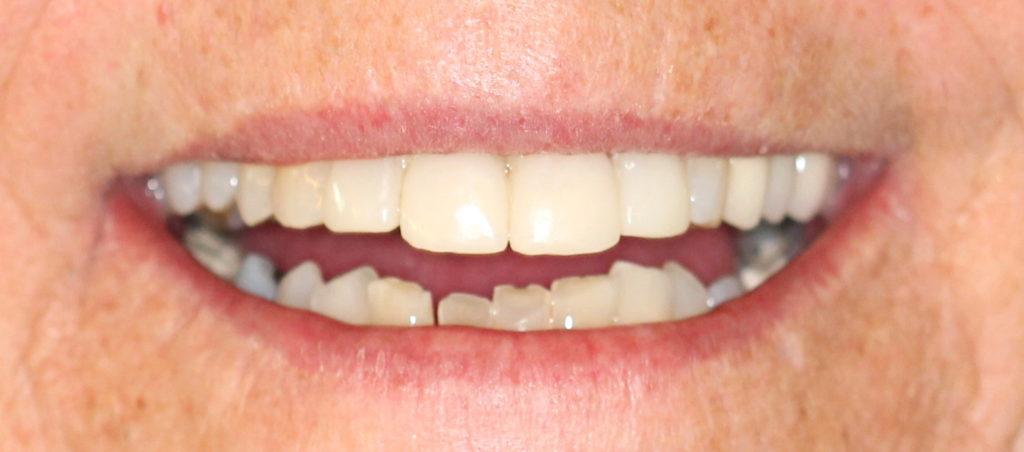 vegassmiles.com - after teeth