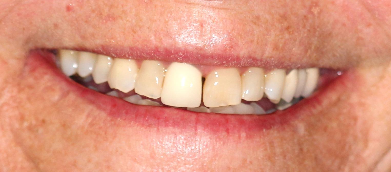 vegassmiles.com - teeth before