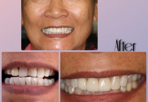 vegassmiles.com - teeth before and after